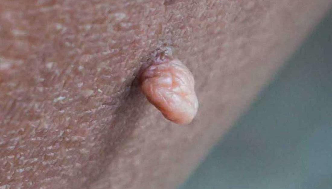 warts on skin folds