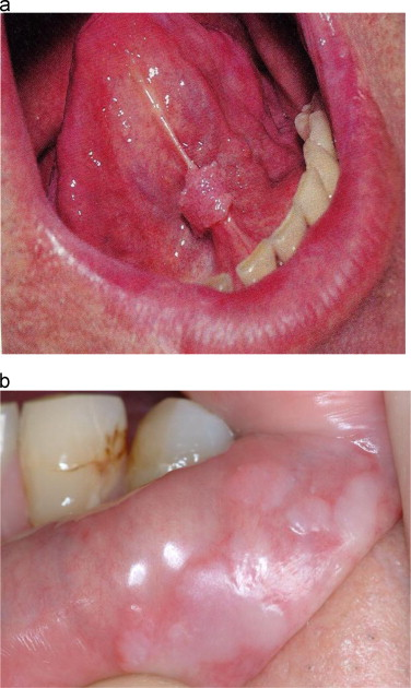 hpv growth in throat