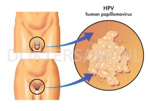 hpv virus wratten behandeling