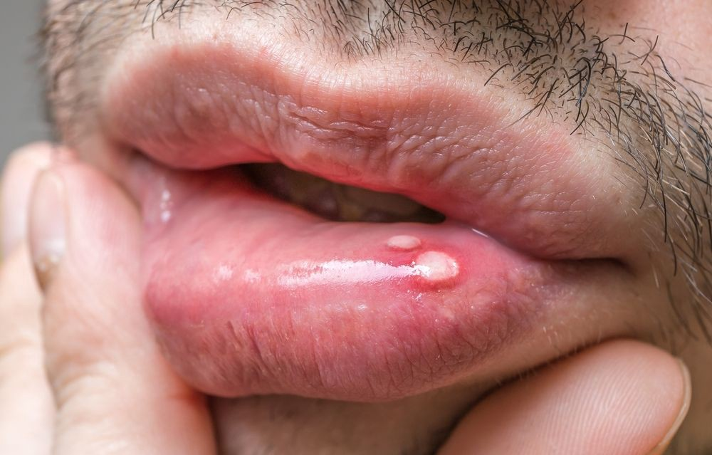 human papillomavirus warts in mouth