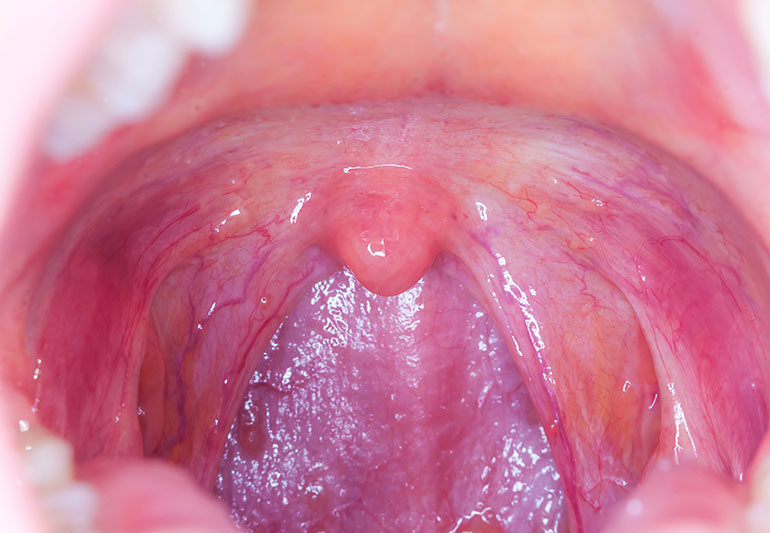 Papilloma lip cancer