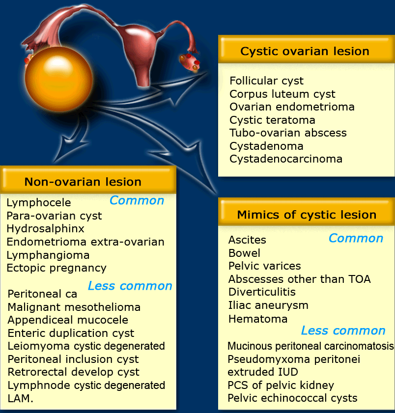 ovarian cancer usmle