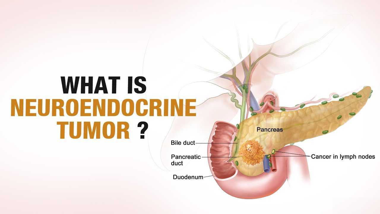 Neuroendocrine cancer of pancreas icd 10, Anthelmintic root word meaning
