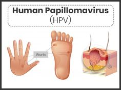 papilloma virus what is hpv intraductal papilloma estrogen