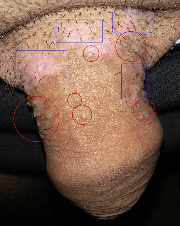 head and neck cancer caused by hpv cancer peritoneal secondary