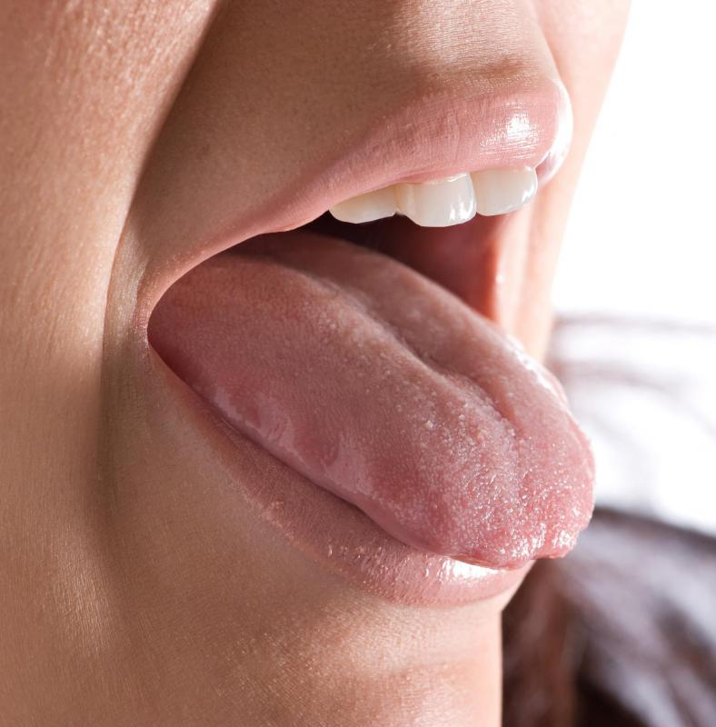 are warts on tongue common