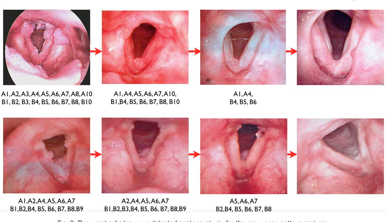 laryngeal papillomas definition hpv high risk dna type 18