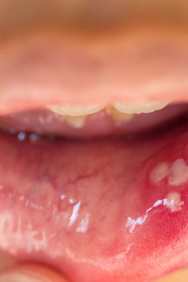 hpv warts back of throat