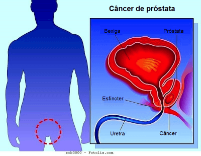 cancer de prostata nivel 7 hpv warts and herpes