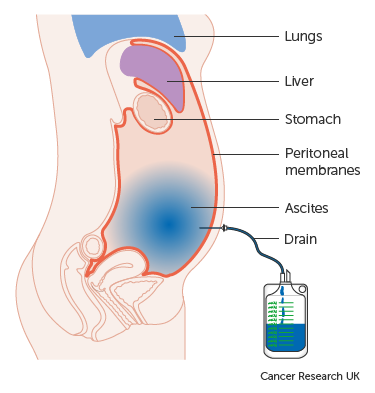 cancer in peritoneal wall jejunal dysbiosis