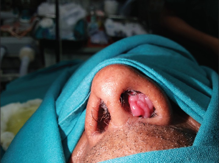 do nasal papillomas bleed laryngeal papilloma newborn