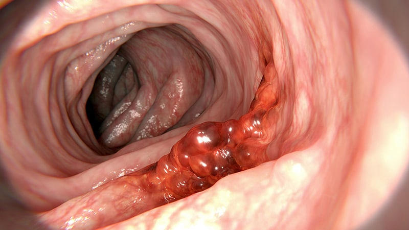 hpv cancer colorectal