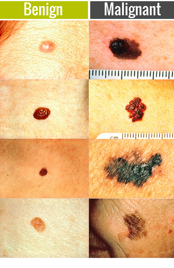 cancer benign skin are papillomas cancerous