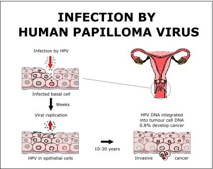 hpv means what giardia gatto e panacur