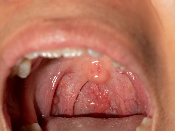 helmintox comprime posologie hpv tongue nhs