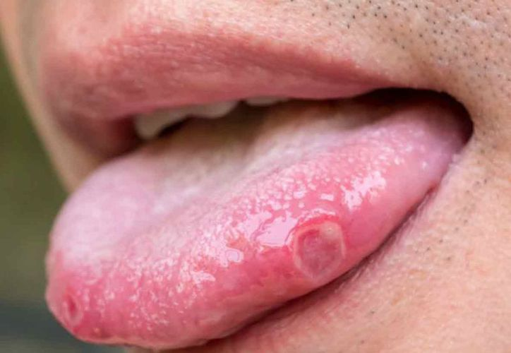 human papillomavirus and mouth low risk hpv cause cancer