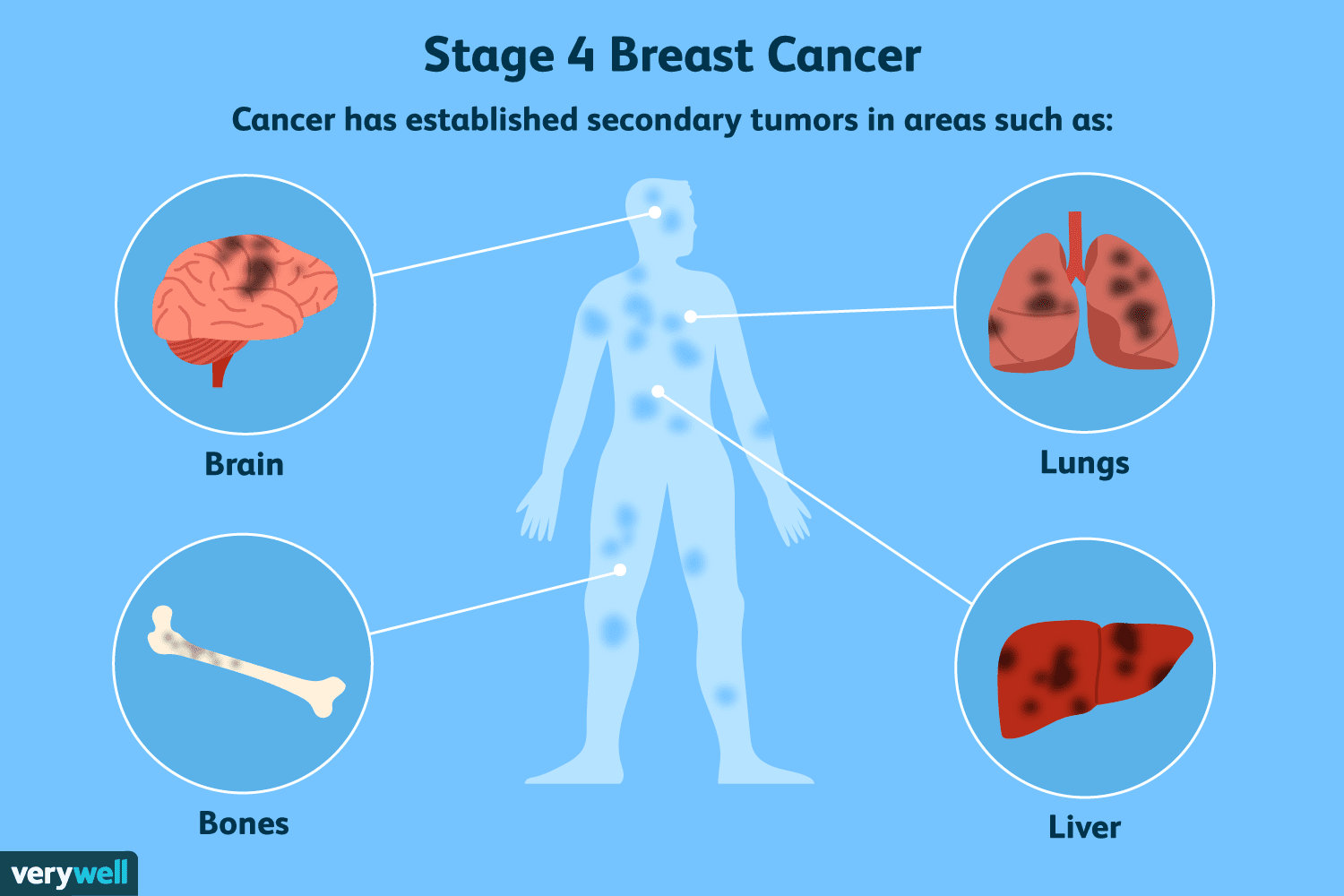 metastatic cancer how long to live