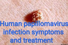 papillomavirus infection treatment ciuperci valori nutritionale