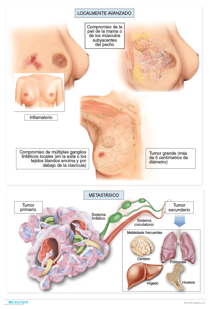 cancer colorectal constipation neuroendocrine cancer unspecified