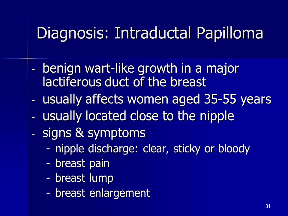 Intraductal papilloma treatment. How are intraductal papillomas removal. Intraductal papilloma pain