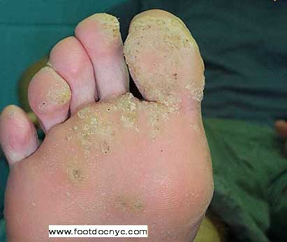 wart removal on foot doctor mullerian papilloma of childhood