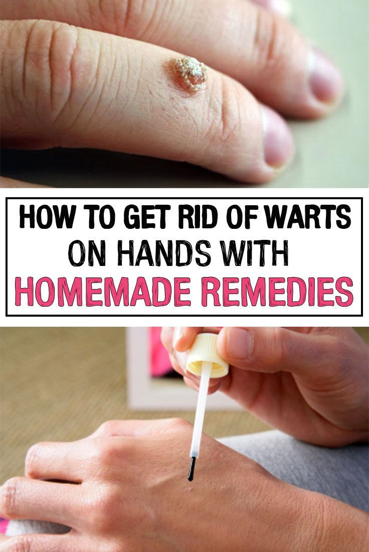 warts on hands how to remove