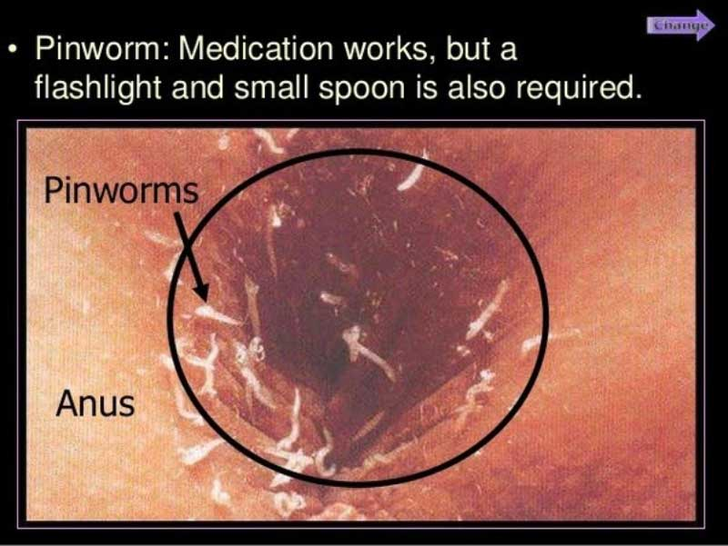 infecție pinworm hpv malignant type