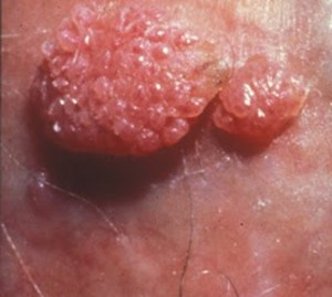 HPV o necunoscuta? - Hpv symptoms without warts