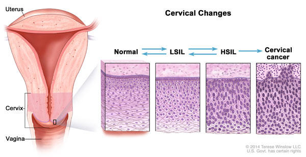 hpv abnormal cells cancer