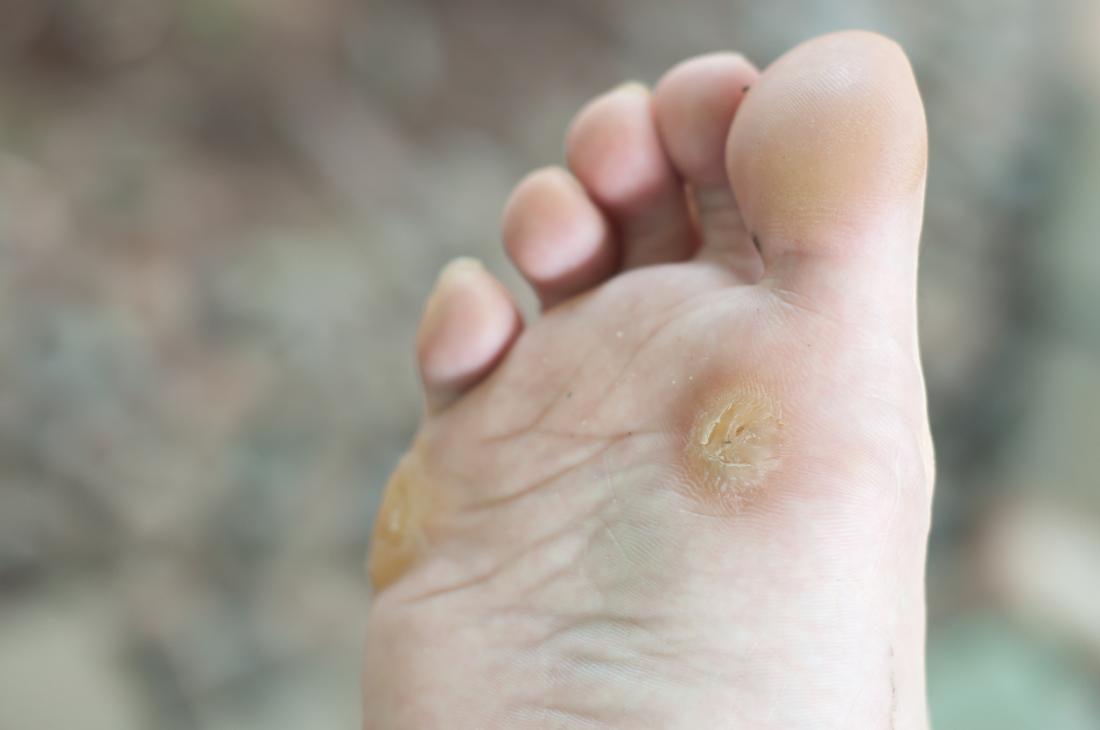 Warts on hands eczema. How Air Conditioning Affects Your Skin   BeBEAUTIFUL